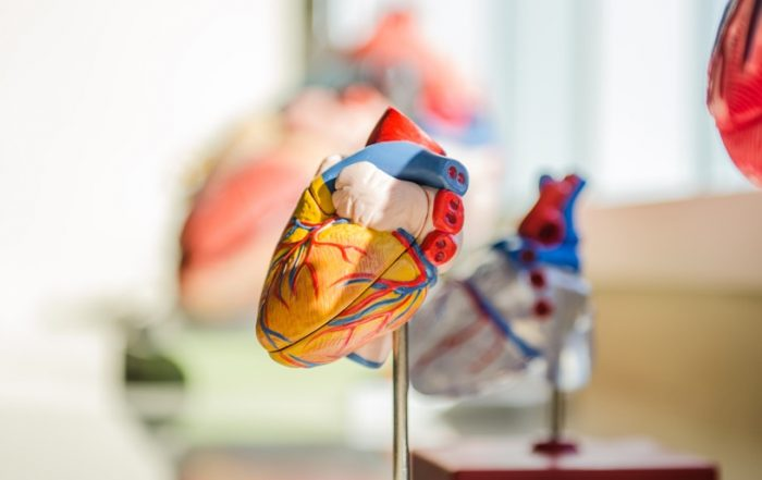 artificial intelligence AI machine learning high performance computing HPC heart defects coarctation of the aorta CoA Cardiology AIMed virtual event 3D printing research medicine healthcaare physician clinician patient simulation study CT MRT scans imaging